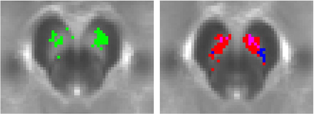 Neuromelanin-sensitive MRI identified as a potential biomarker for psychosis