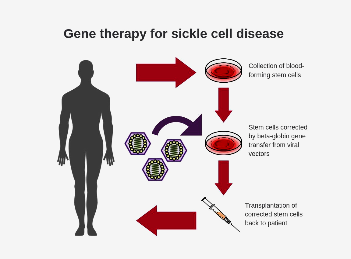 NIH researchers create new viral vector for improved gene therapy in