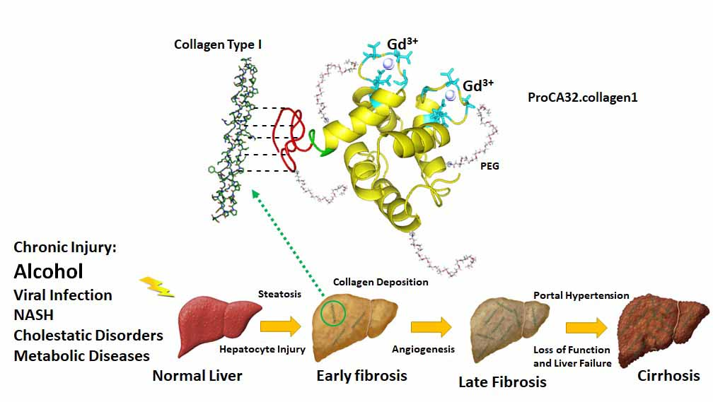 New compound helps find early signs of liver damage
