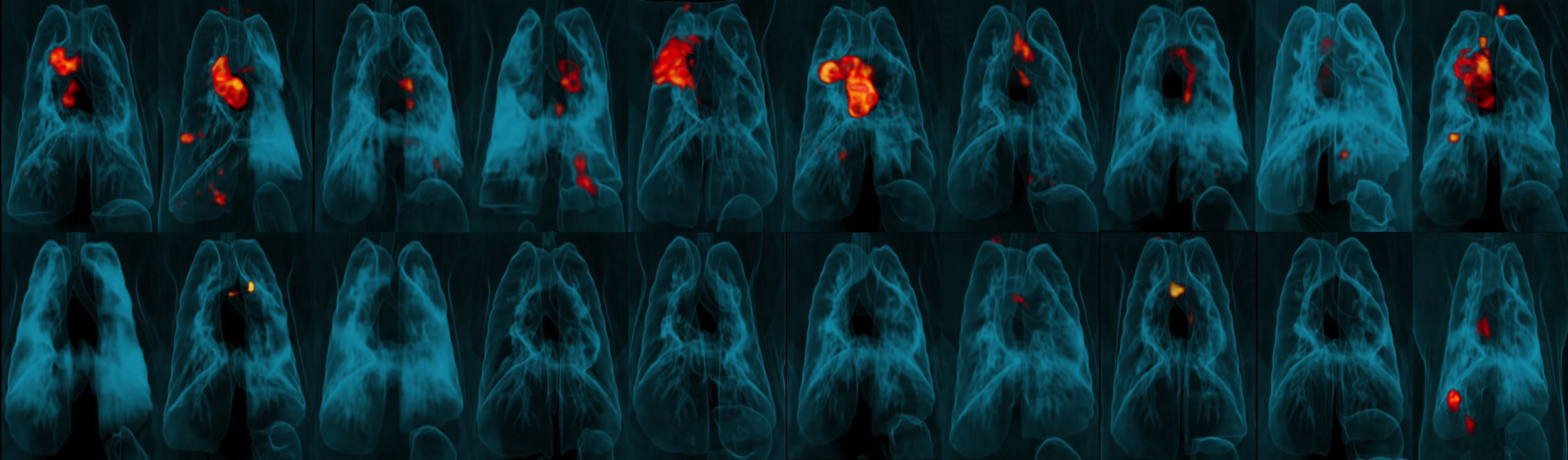 Image of PET-CT lung scans