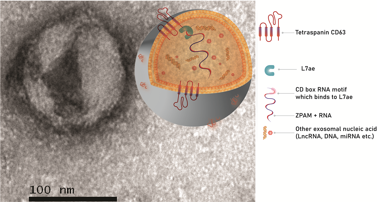 Exosomes are cellular products roughly 100 nm in diameter. This image is seen after 30,000-fold magnification under a transmission electron microscope. Graphical representation of exosomes shows packaging of therapeutic RNA with the help of scaffold prote