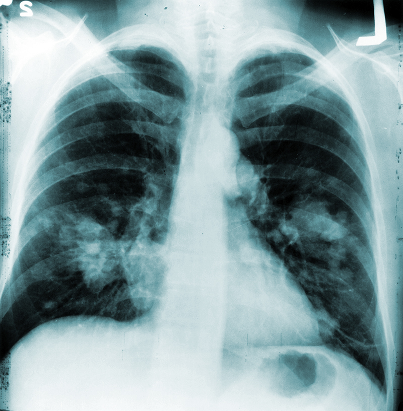 Annual Chest X Rays Don T Cut Lung Cancer Deaths National Institutes Of Health Nih