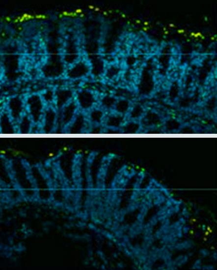 Food Additives Promote Inflammation Colon Cancer In Mice National Institutes Of Health Nih