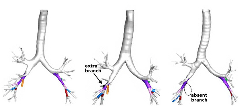 Illustration of normal lungs, lungs with an extra branch, and one with a branch missing