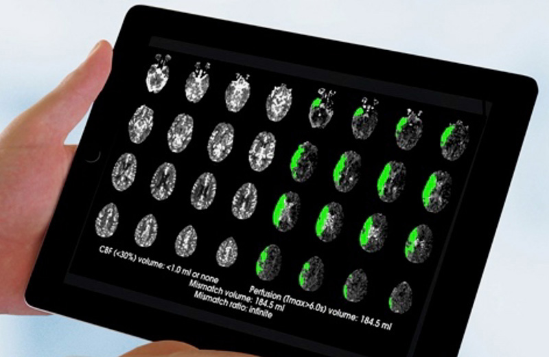 A tablet screen showing multiple brain perfusion scans