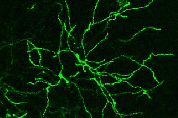 Confocal microscope image of neurons
