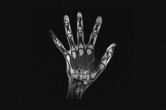MRI scan of the hand