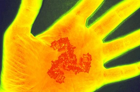 Image of a scan of a hand undergoing inflammation