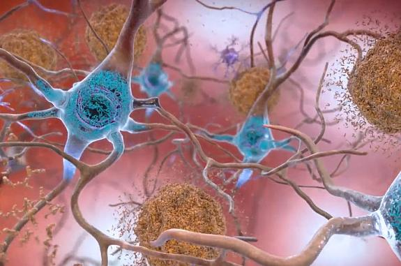 Illustration of nerve cells with plaques and tangles