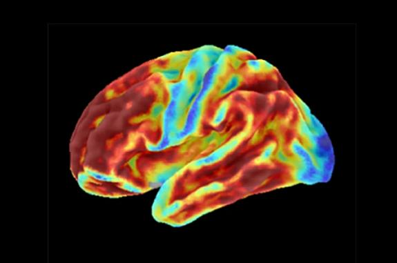 Brain images of a woman with an inherited condition that causes early-onset Alzheimer's disease show high levels of amyloid plaques (top) but limited tau (bottom) for her age. Blue represents lowest levels and red represents highest.