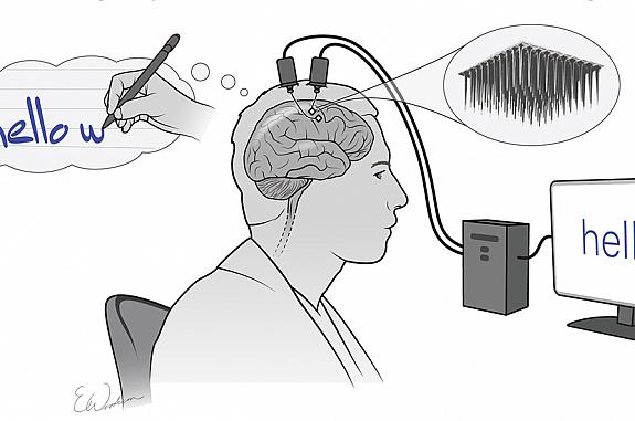 Cartoon of man thinking about writing a sentence while electrodes implanted into his brain send a signal that appears as words on a computer screen