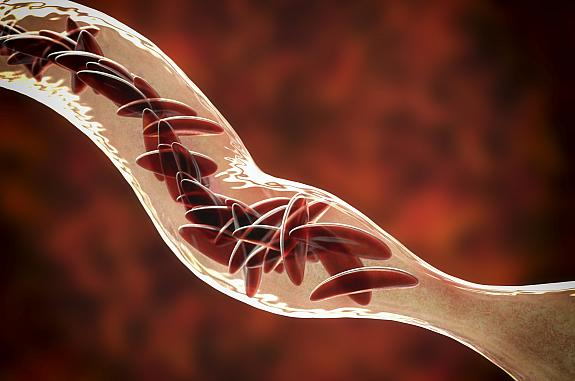 Clumped sickle cells in a blood vessel
