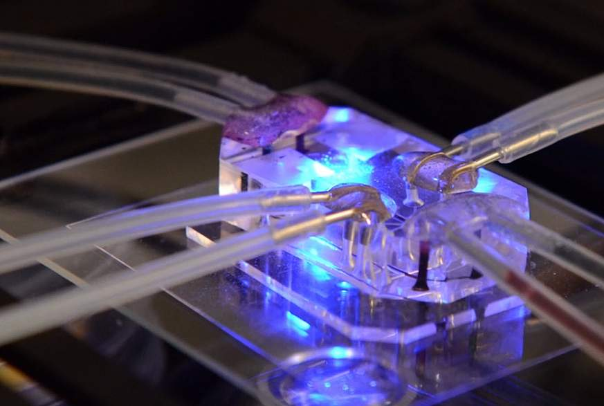 Lung-on-a-chip.