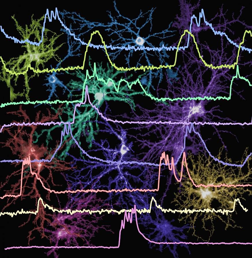 Image of neuron firing patterns