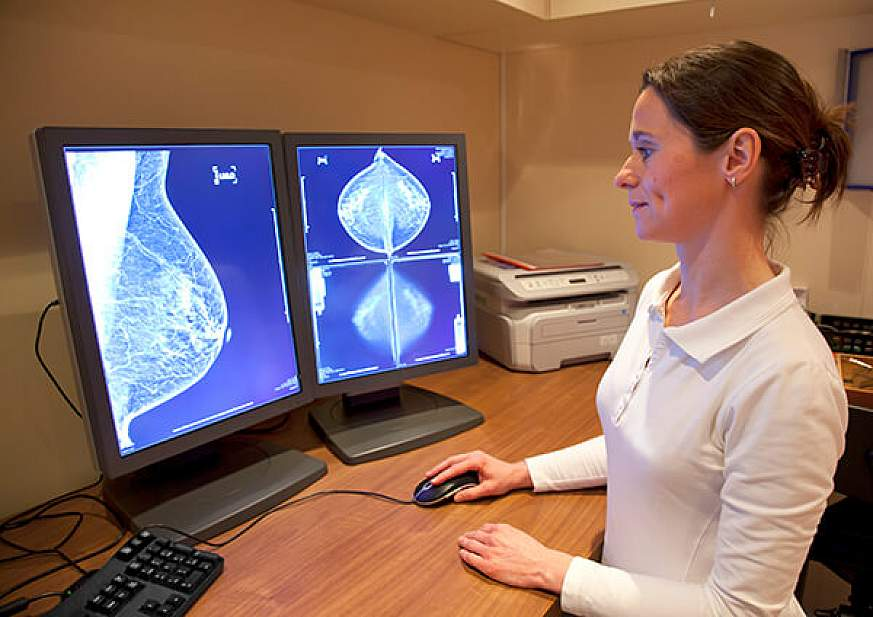 A radiology technician reviews a mammogram.