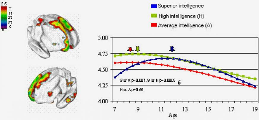 The developmental trajectory of waxing and waning in cortex thickness differs as the brain matures in different IQ groups. Thickness of the area at the top/front/center, highlighted in MRI brain maps at left, peaks relatively late, at age 12 (blue arrow),