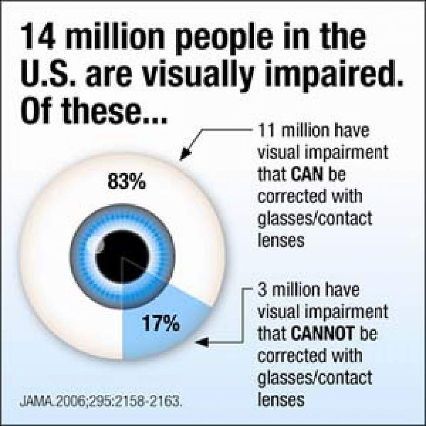 Study Finds Most Americans Have Good Vision, But 14 Million Are Visually  Impaired | National Institutes of Health (NIH)