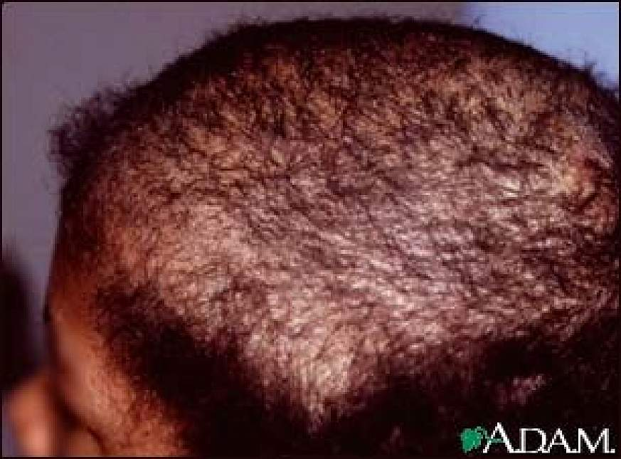 Human head with a bald patch.