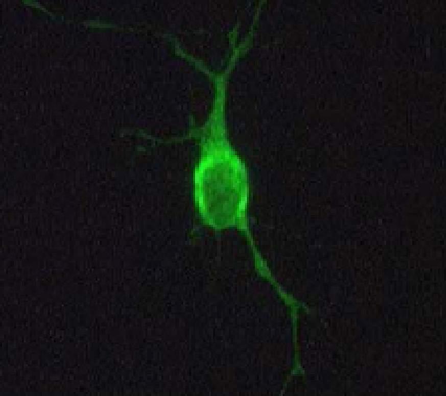 Image of a rat neuron.