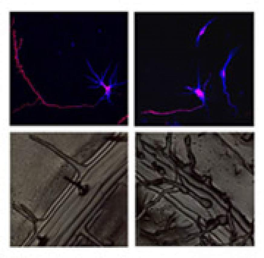 Rat cortical neurons and plant roots.