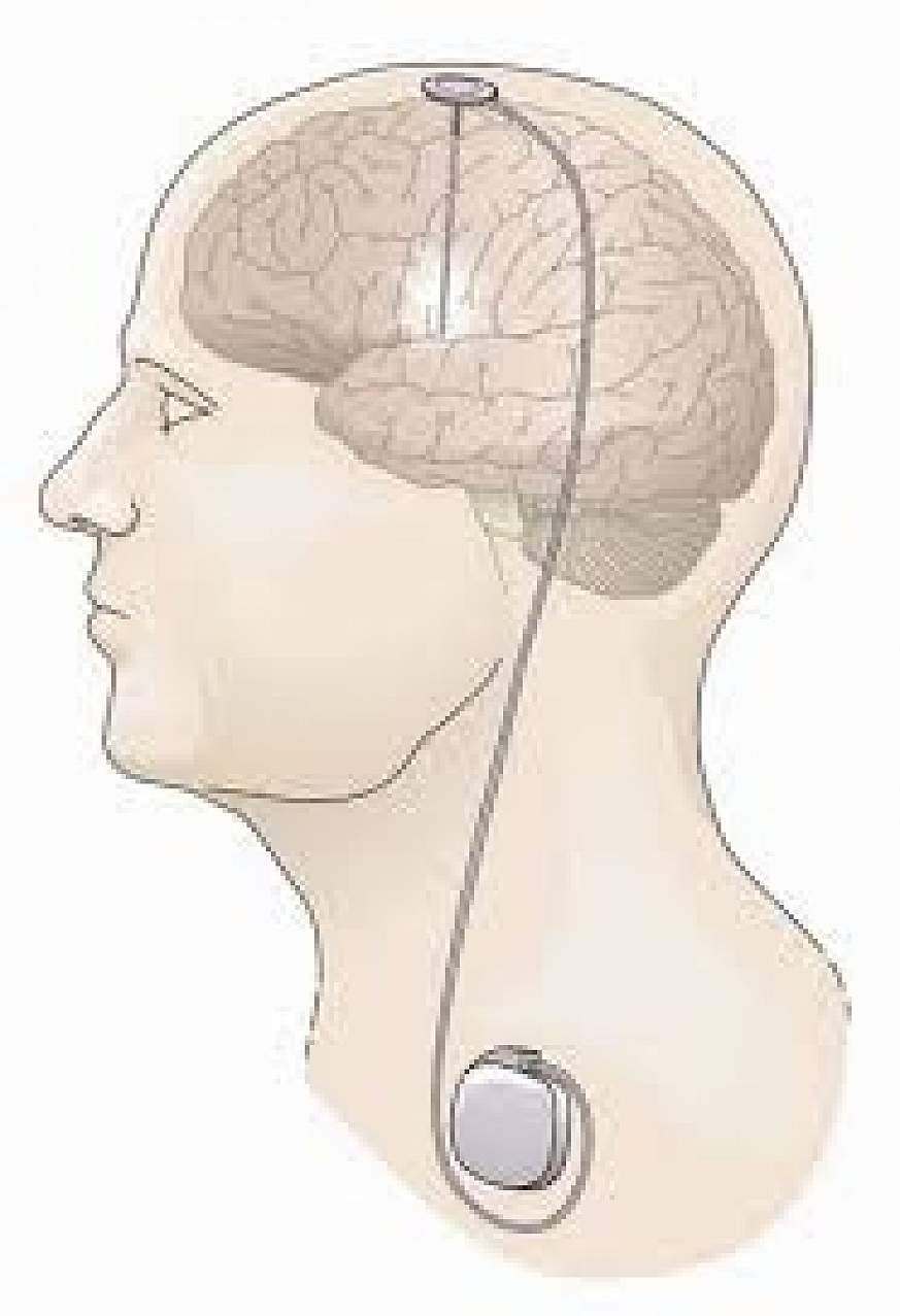 Illustration of DBS for Parkinson's disease