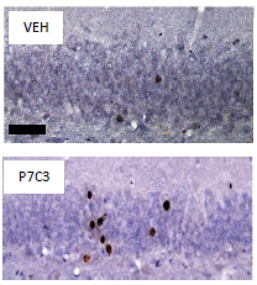 Image of Rat Dentate Gyrus: Newborn Neurons