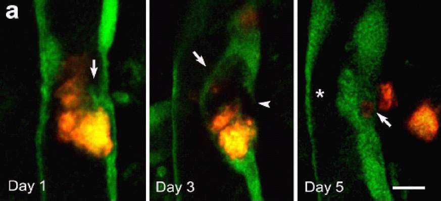Time-lapse images of a blood vessel in a mouse brain.