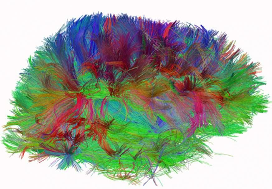 Diffusion spectrum imaging of human brain