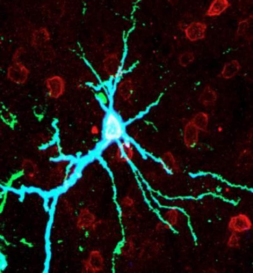 Neuron over-expressing PKMzeta