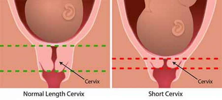 Diagram depicting a normal size cervix and a short cervix