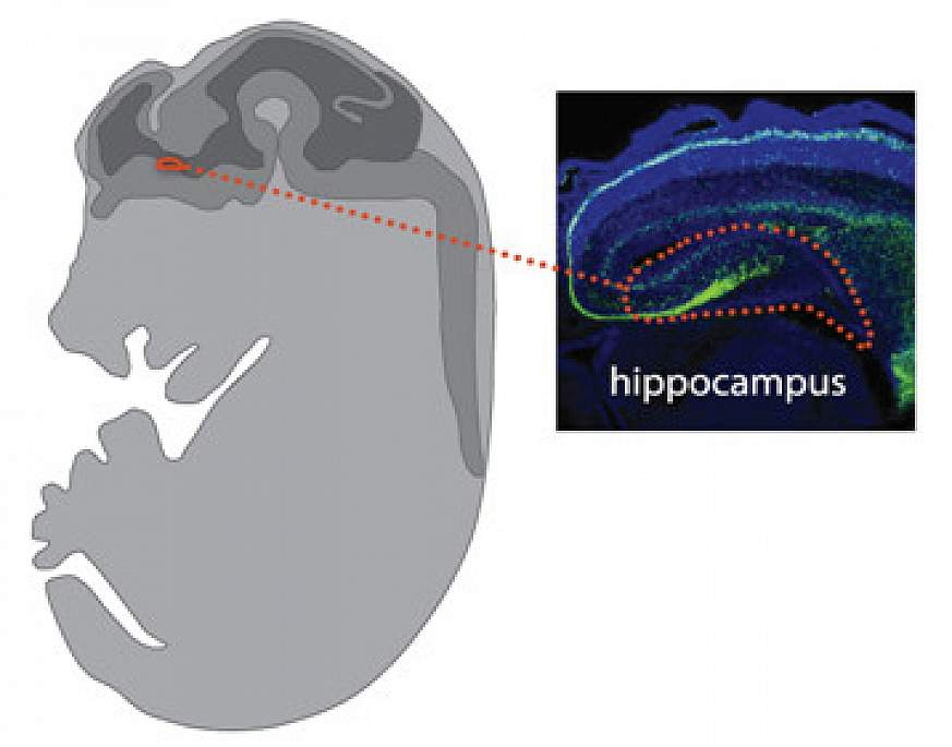 Interneuron cells highlighted in the brain