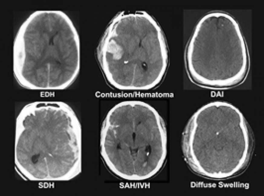 photo of CT scans show differences among six types of traumatic brain injury