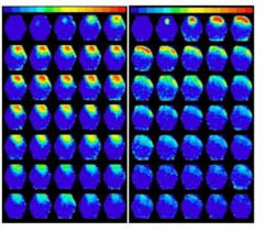 abnormal brain activity spreading from a tumor in mouse brain tissue after electrical stimulation.
