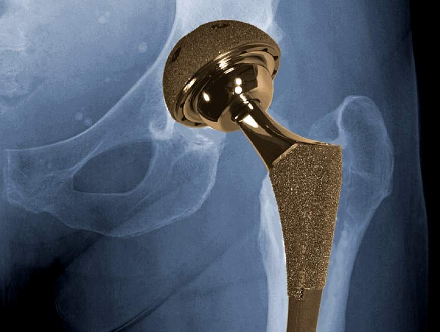 Graphic of hip showing metal-on-metal implant.