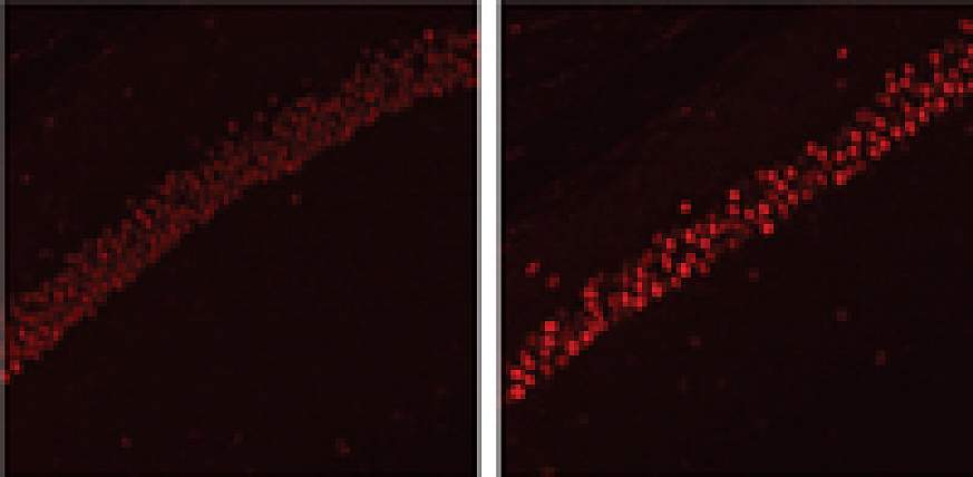 Mouse model of Alzheimer's disease elevated protein levels in the hippocampus.