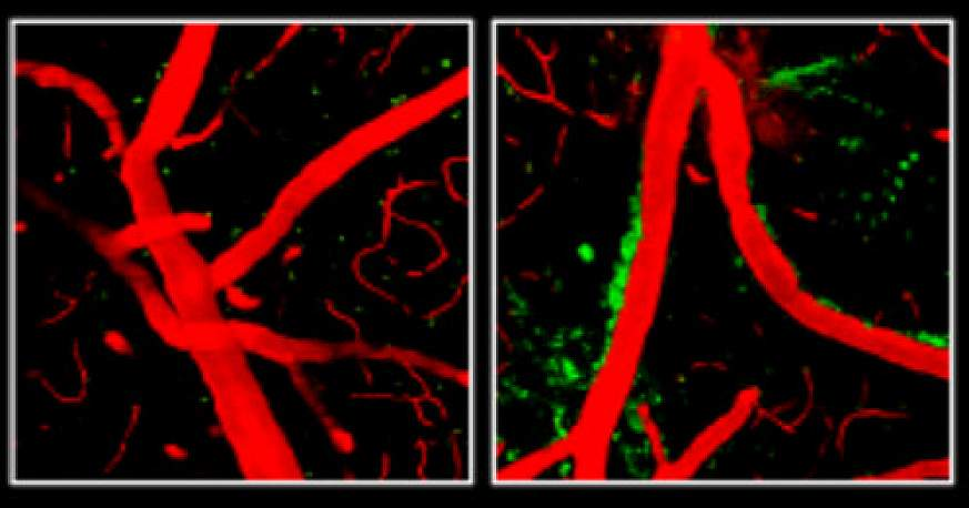 ApoE4 weakens the blood-brain barrier in mice.