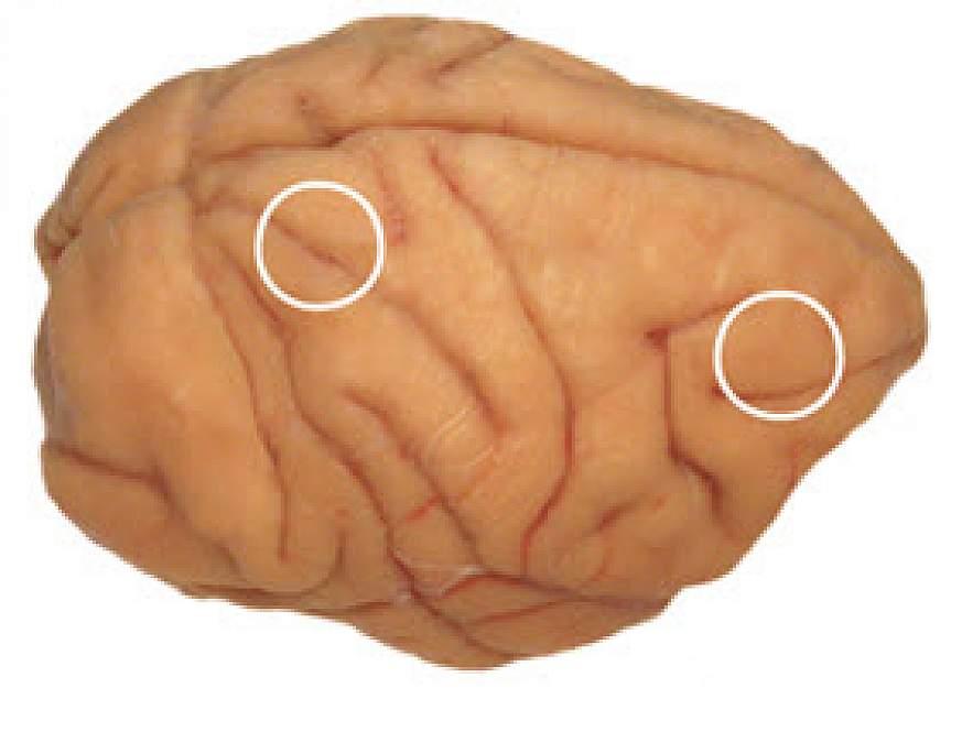 Hubs of brain working memory circuit