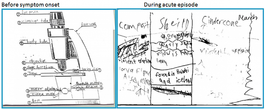 Child's drawing before and during acute episode.