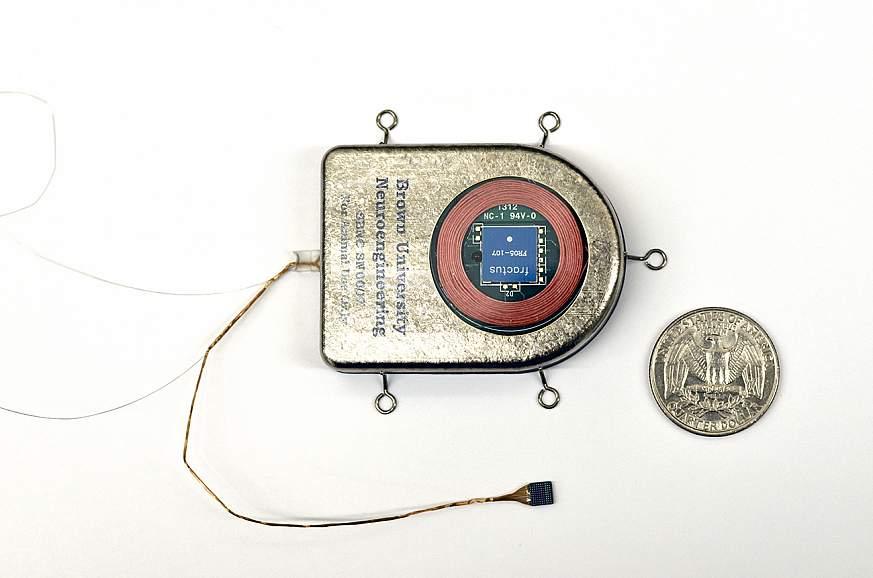 Photo of wireless, implanted brain sensor