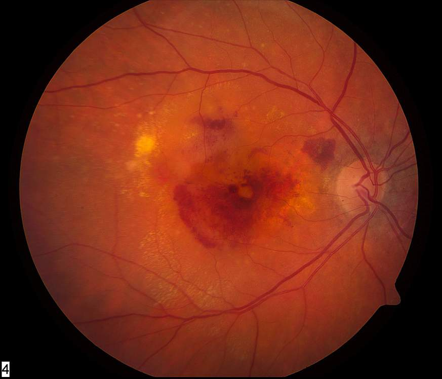 Photo of eye with neovascular AMD