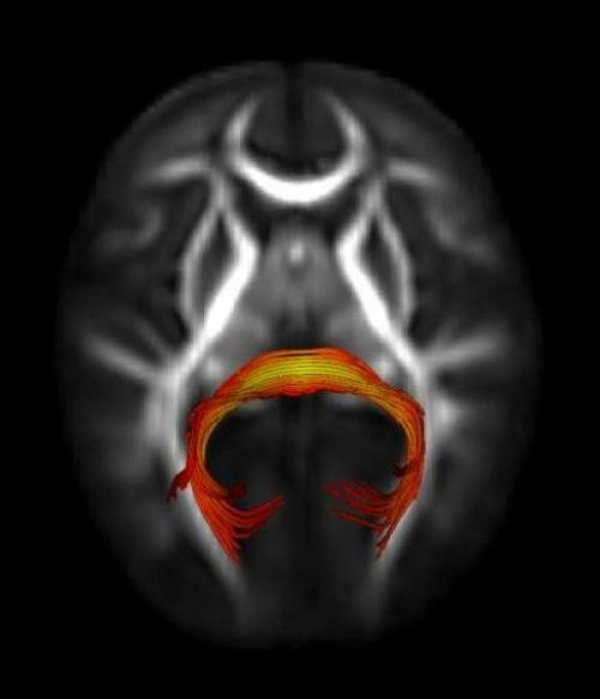 Image of brain structure known as the splenium of the corpus callosum