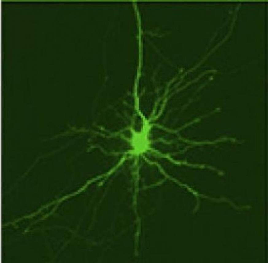 striatal neuron