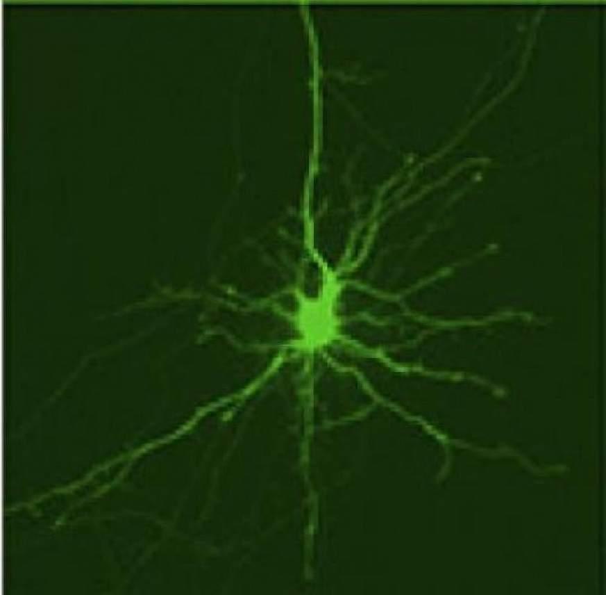 striatal neuron