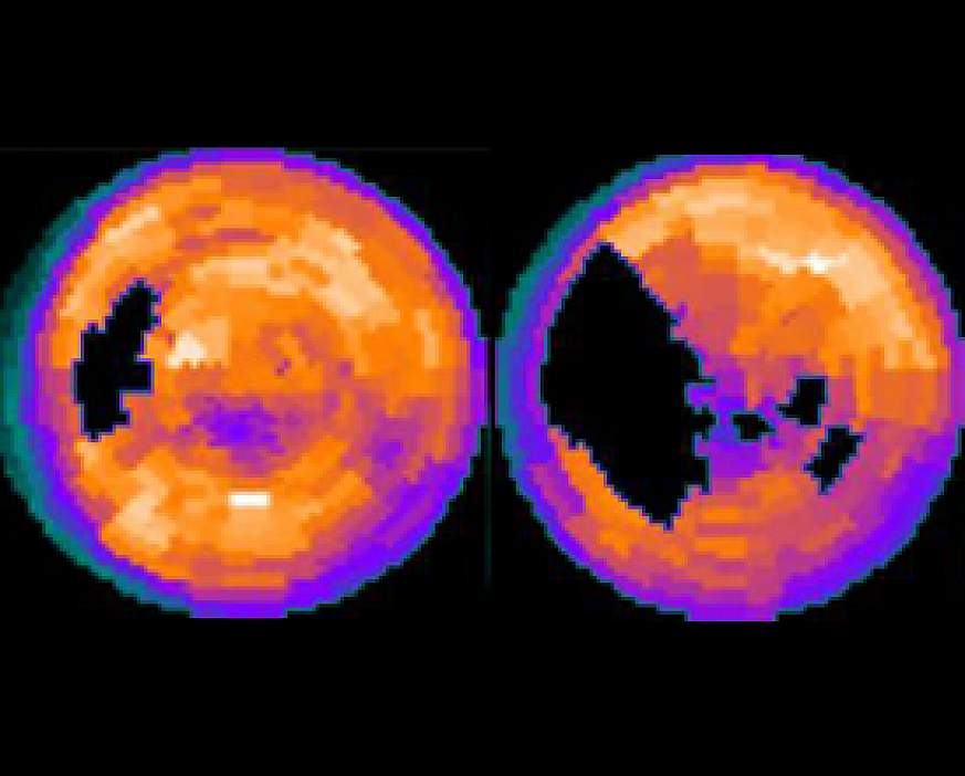 Computer image of two heart scans