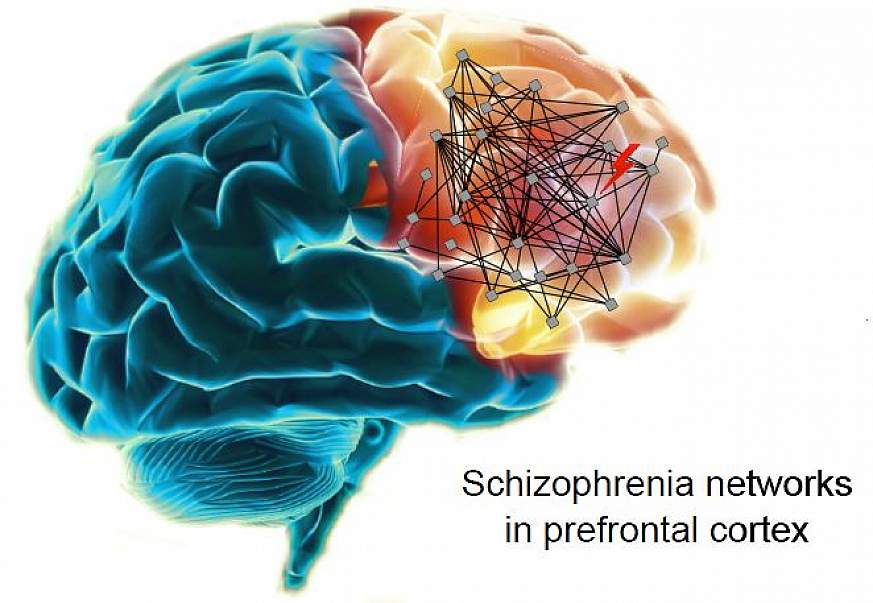 Illustration of schizophrenia networks in the human brain