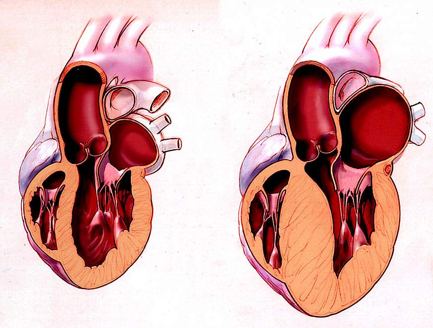 Diagram of a normal and affected heart