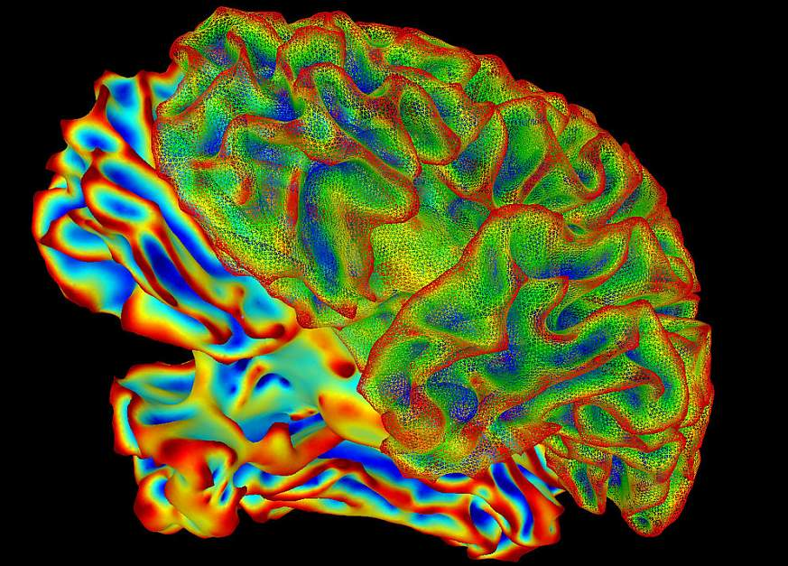 Imaging of a whole, human brain.