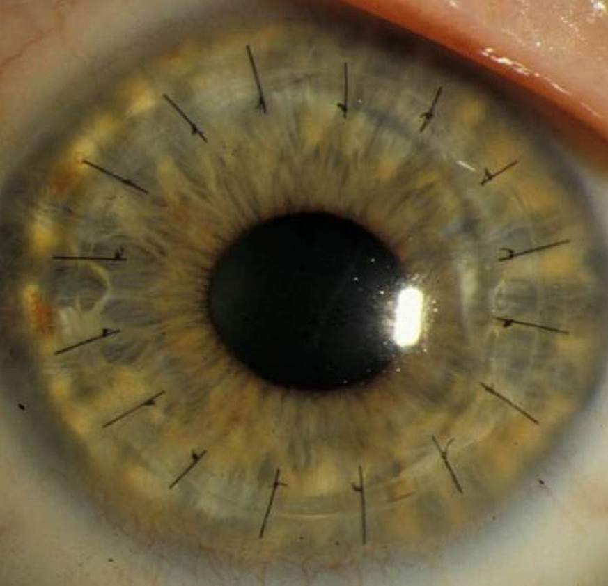 Photo of an eye after a traditional cornea transplant.