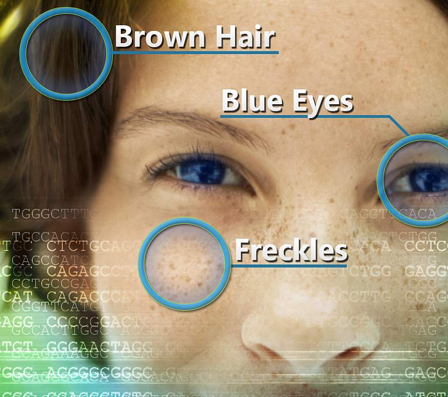 An image showing the results of pigmentation genetics