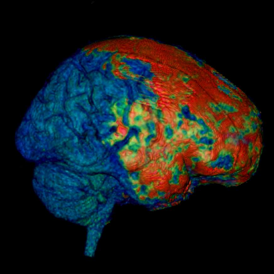 Image showing effects of concussion on the human brain